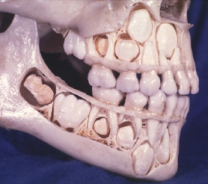 Where did you think all those adult teeth were hiding, anyway?